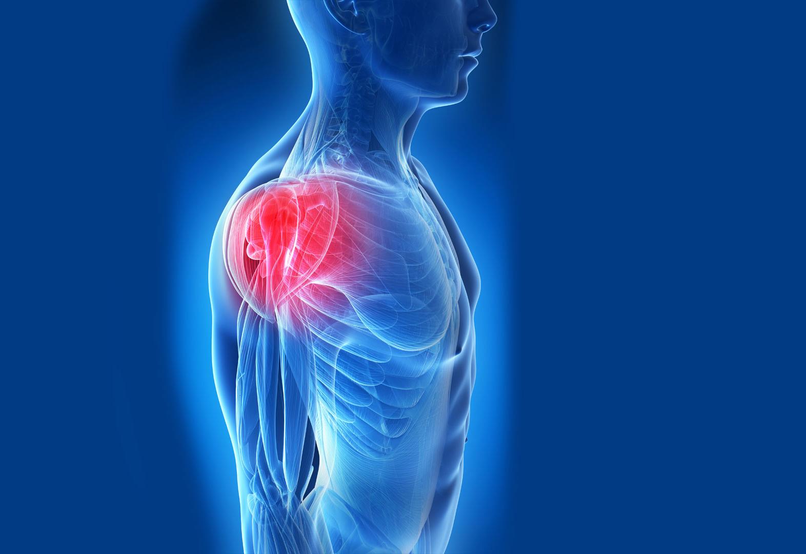 lesiones-de-hombro-phisiup